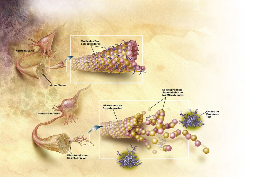 Infografía con el proceso de degradación neuronal previo a la aparición del alzheimer.