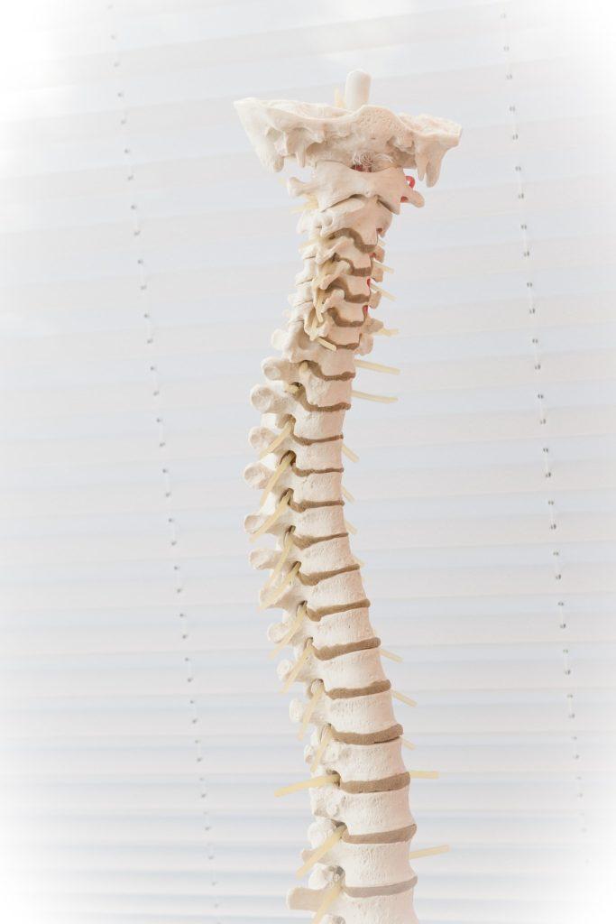 Fotografía de una columna aquejada de una hernia discal.