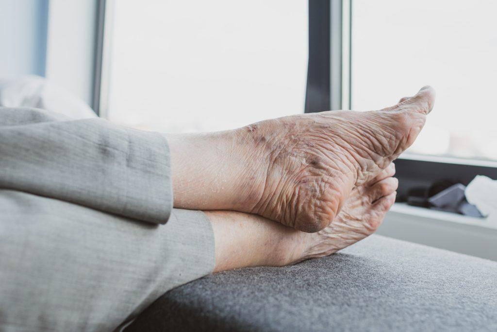 Imagen de unos pies en reposo de una persona mayor.
