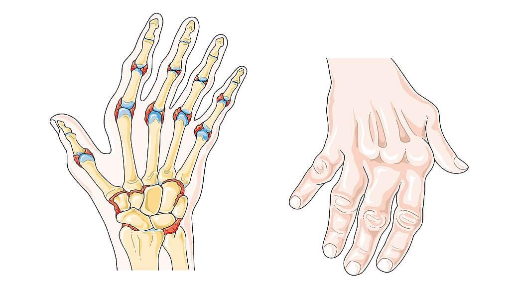 Ilustración con dos manos que ilustran una artritis reumtoide.