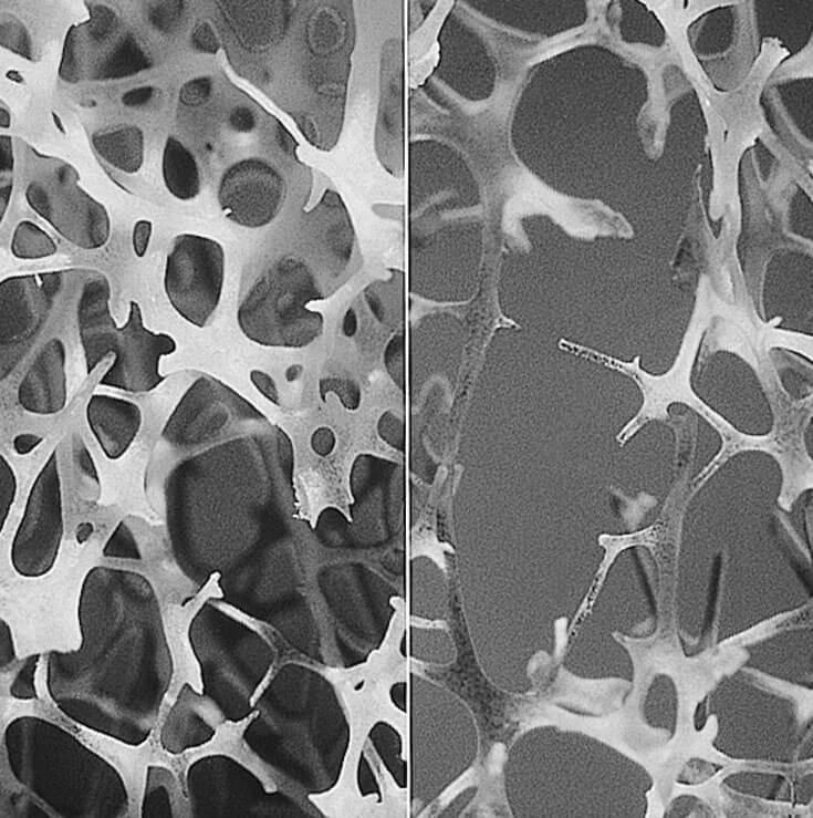 Radiografía de un hueso con osteoporosis,
