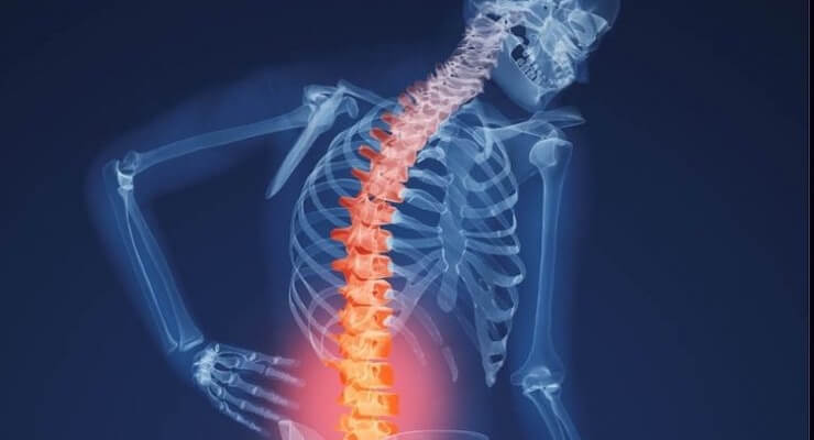 Imagen de una radiografía con una columna vertebral doblada y aquejada de osteoporosis