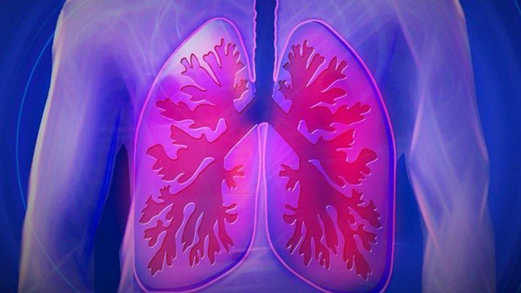 cual es la diferencia entre neumonia y pulmonia