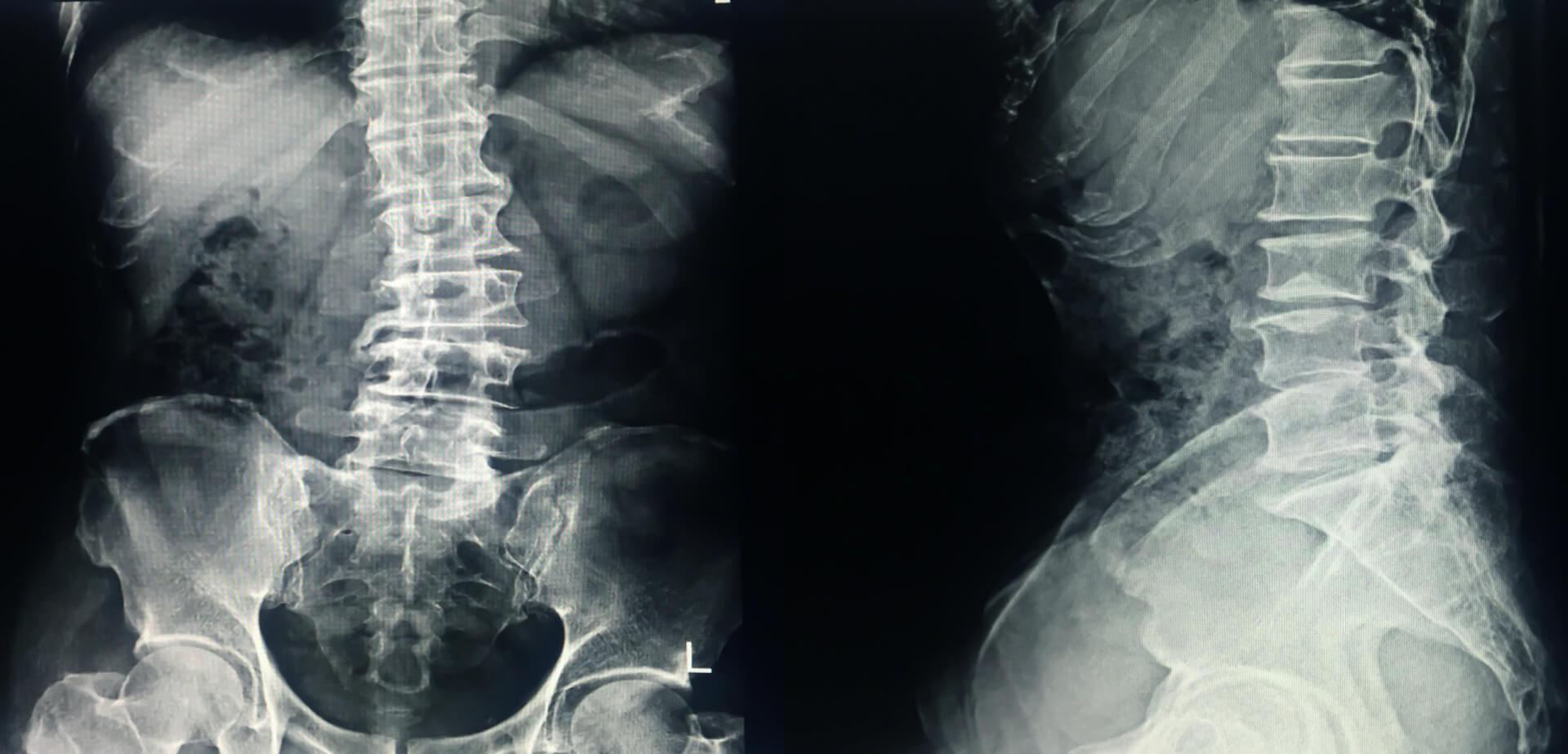 Radiografía frontal y lateral de una columna vertebral aquejada de escoliosis.